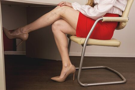 Painful varicose and spider veins on female legs. Phlebology and DVT. 免版税图像