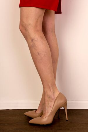 Varicose veins on a slim female legs. Phlebology - image Zdjęcie Seryjne