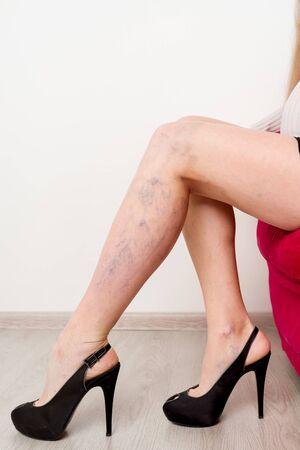 Varicose veins on a slim female legs.