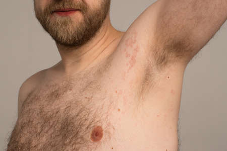 Allergy reaction is red spots on the body of a young man. Urticaria
