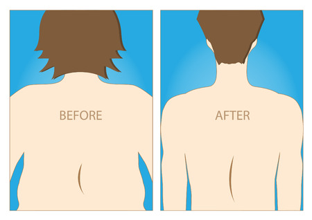 Body of man exists before and after the diet,healthy lifestyle,vector illustrations