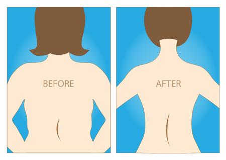 Lichaam van vrouwen bestaat voor en na het dieet, gezonde levensstijl, vector illustraties