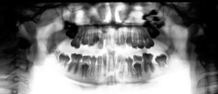 dissection: X-ray of Human Jaw Bone