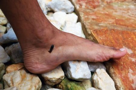 sanguijuela: Tropical Sanguijuela Morder Pie humano en la selva tropical de Asia