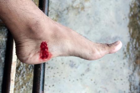 sanguisuga: Ferita incisa su Piede umano, tropicale Leech Bite in Asian Rainforest Archivio Fotografico