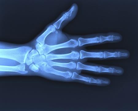 radius ulna: X-ray of hand