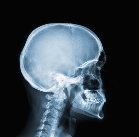 head and shoulder: X-ray of head