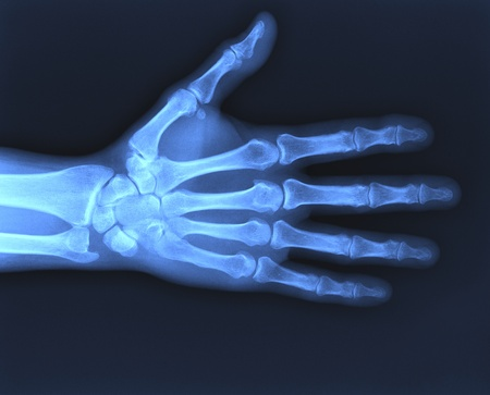 X-ray of hand. photo