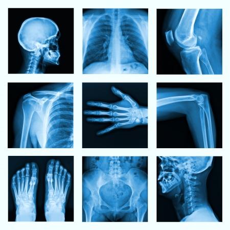 ortopedia: Collage de muchas radiografías de muy buena calidad