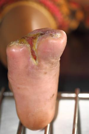 complicación: la herida de diab�tico