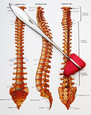medical tool photo