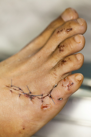 fatal: wound of foot
