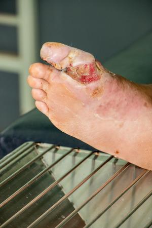 diabetic foot Standard-Bild
