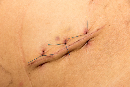 suture of wound
