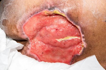 herida: herida en el coxis
