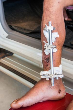 fractura: fractura de la pierna Foto de archivo