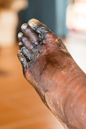 wound of diabetic foot Stock Photo - 39529181
