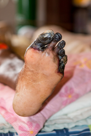 wounded: wound of diabetic foot