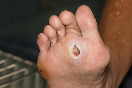 herida: herida del pie diabético Foto de archivo