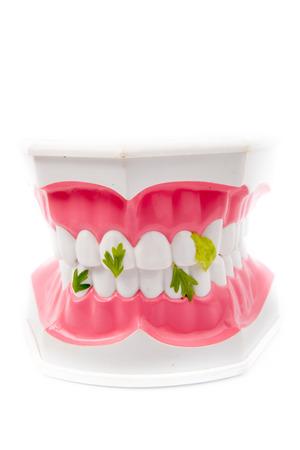 dientes sucios: Modelo dental de dientes con residuos vegetales