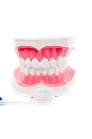 dientes sucios: Modelo dental de los dientes con cepillo de dientes