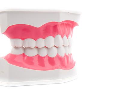 dientes sucios: Modelo dental de dientes Foto de archivo