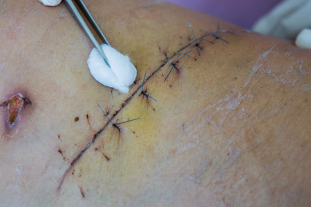 operation suture with a blue fiber at leg patient