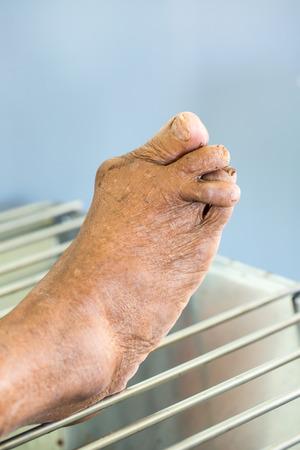 deformed: Foot Deformed From Rheumatoid Arthritis