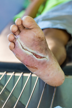lesion: wound of diabetic foot