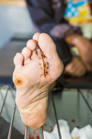 wound of diabetic foot