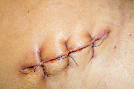 scar from operation suture with a blue fiber