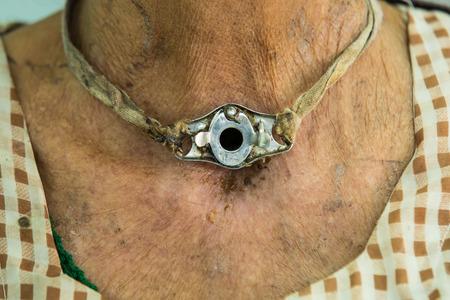 dirty tracheostomy