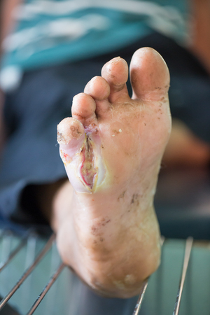 neuropathic: Foot ulcers from diabetes