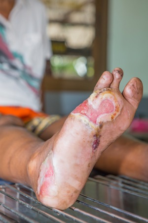 ulcers: Foot ulcers from diabetes , selective focus.