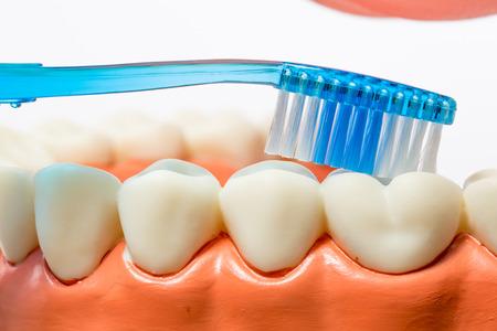 cavity braces: dental model,teeth model on white background. Stock Photo