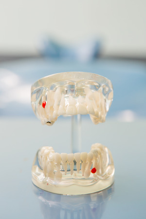 esthetics: Dental Teeth Model and dental tool