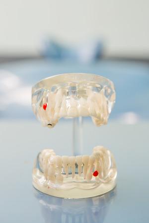 esthetics: Dental Teeth Model and dental tool