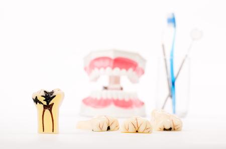 cavity braces: dental model,teeth model,dental tool on white background
