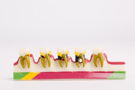 esthetics: Dental Teeth Model and dental tool on white background