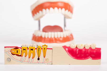 esthetics: Dental Teeth Model and dental tool on whie background