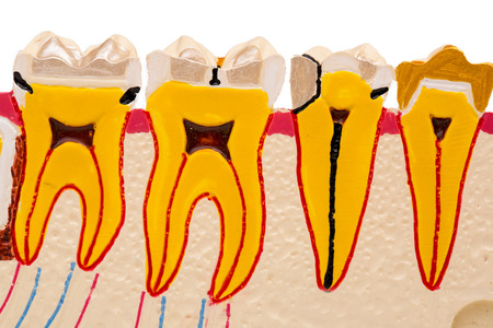 Dental Teeth Model on white background Stock Photo