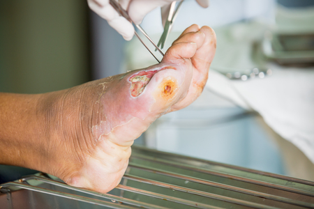 infected: infected wound of diabetic foot