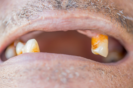 Open mouth with caries