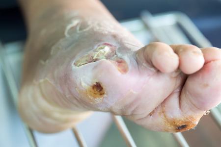 Ferita infetta del piede diabetico Archivio Fotografico - 68577030