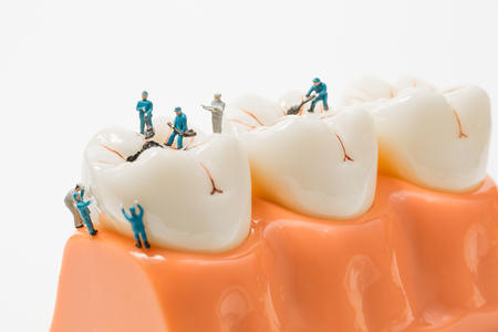 People to clean tooth model on white background,miniature