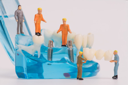 miniature people clean tooth or dental model,medical concept