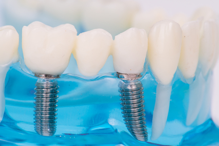 注入と歯列模型のクローズ アップ