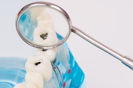 미니어처 사람들이 치과 도구 클린 치아 또는 치과 모델, 의료 개념을 사용합니다.