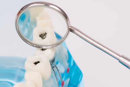 miniature people use dental tool clean tooth or dental model,medical concept