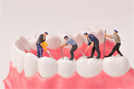 miniature people and dental model,dental care concept
